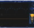 Figure 1-3: 12.5W, 18 LED input output voltage/current waveform.