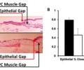 LbL bandage-treated wounds exhibit significantly accelerated closure of both the epithelium and PC muscle.